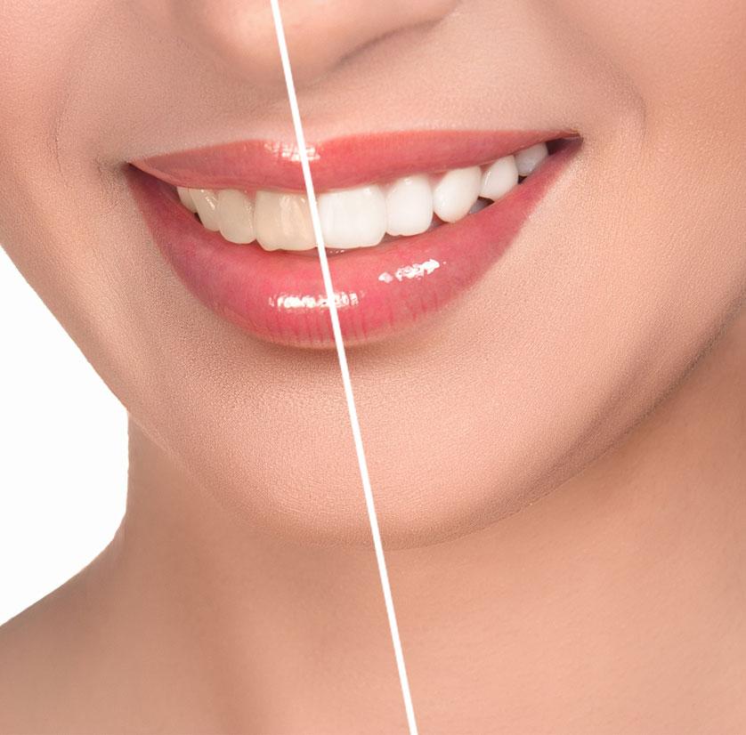 blanchissement-dentaire
