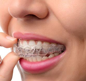blanchiment des dents lyon