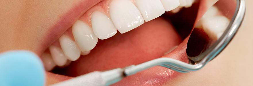 Blanchiment et implants dentaires